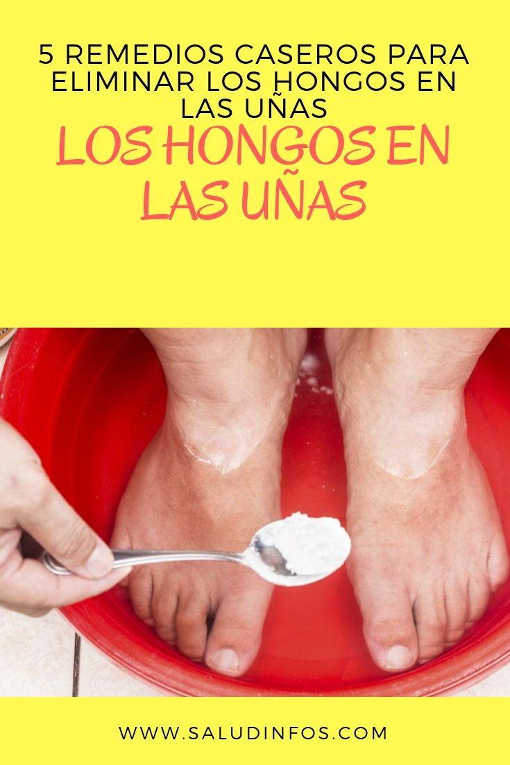 5 Remedios Caseros Para Eliminar Los Hongos En Las Uñas Eliminar Hongos Uñas Toenail Fungus Home Remedies Health And Beauty Skin Care Remedies
