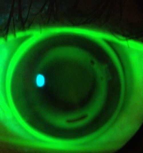 Review Of Cornea And Contact Lenses Gp Innovation Is Alive And Well Scleral Lens With Front Toric Markings Cool Eyes Wellness Contact Lenses