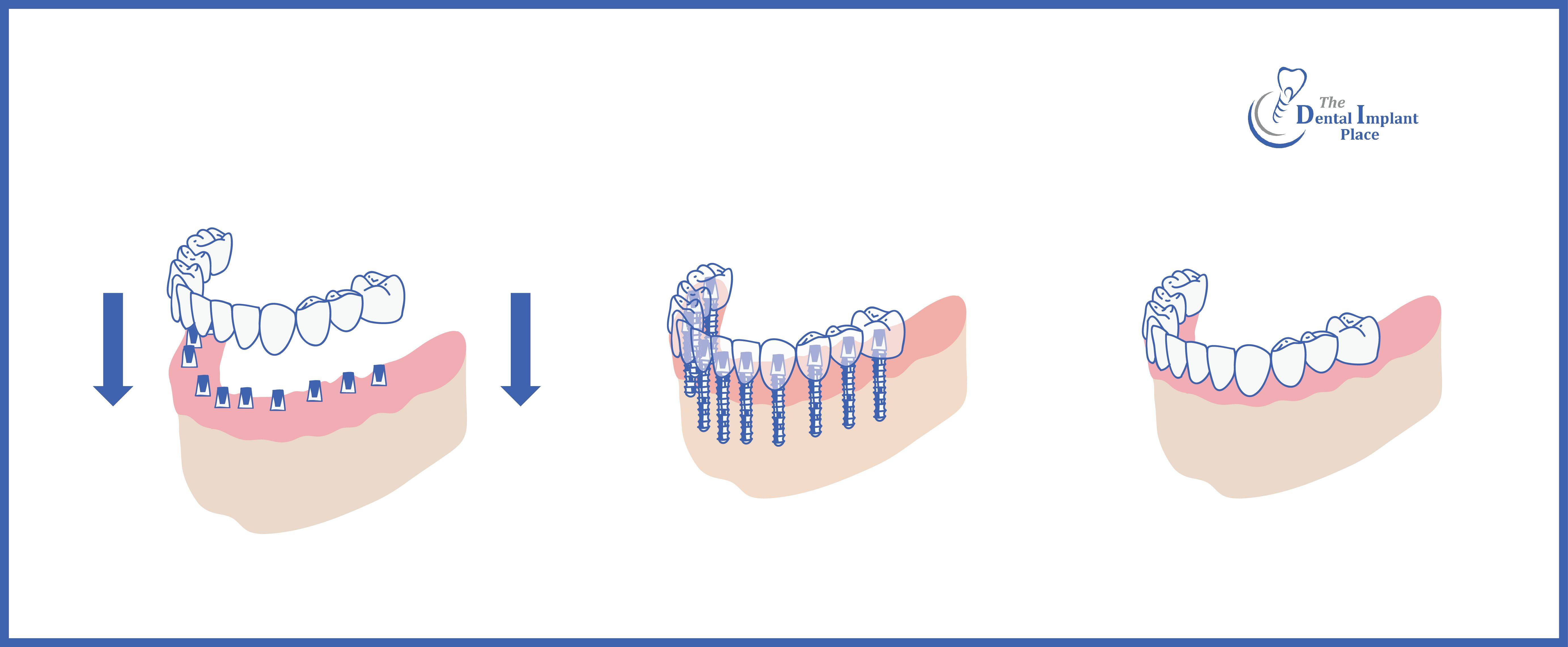 Here's a great picture of what full arch dental implants are!