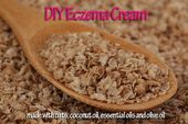 Photo of DIY # #Eczema #Cream #brought #to #you #by