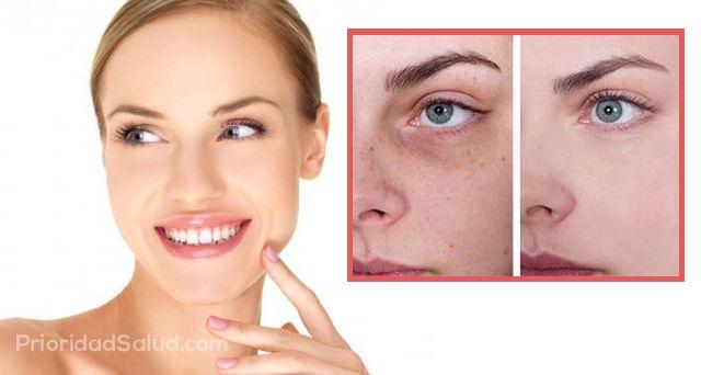 tratamiento para las manchas de sol en la cara