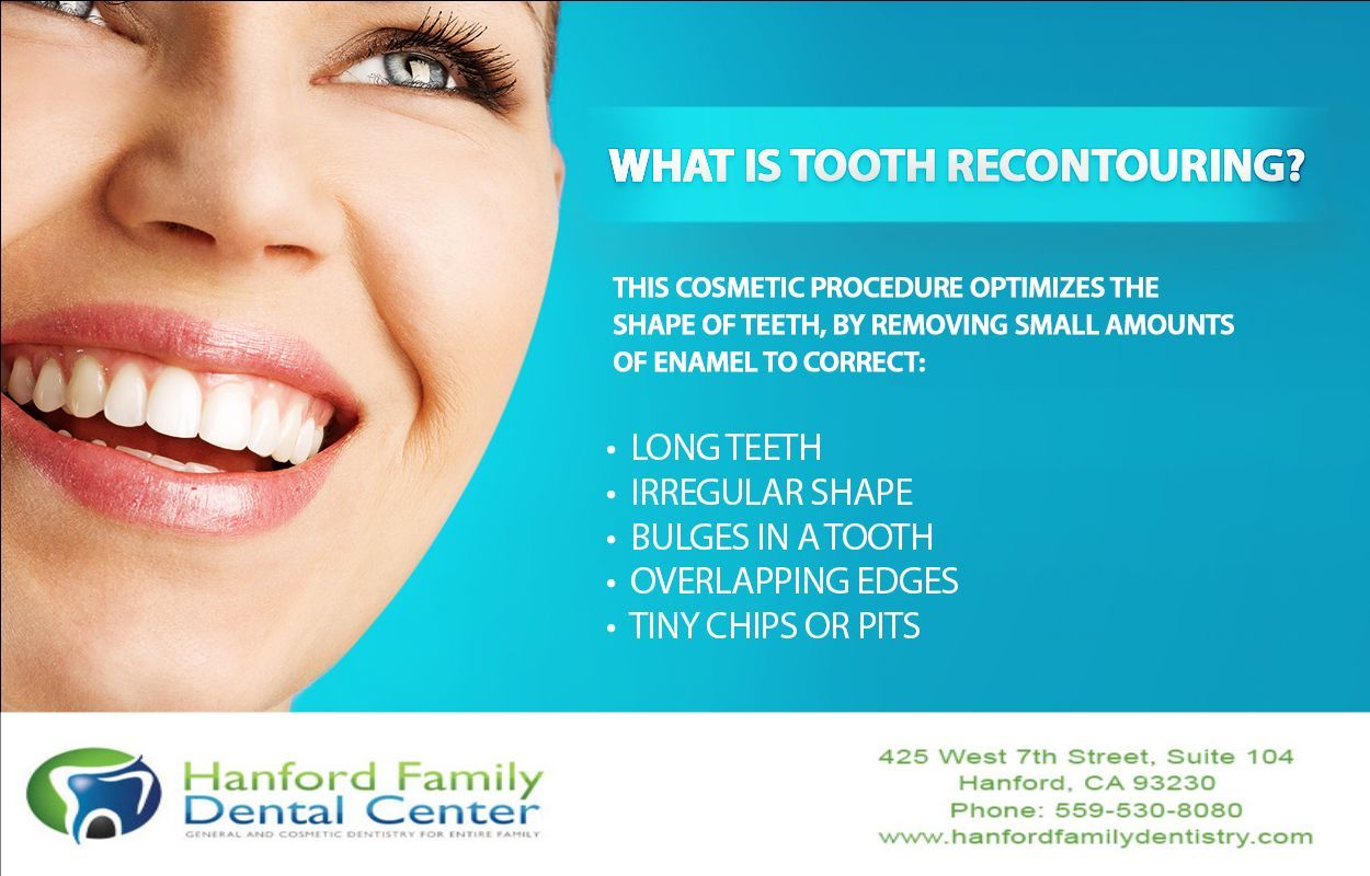 Recontouring may be performed alone, or in conjunction with other cosmetic procedures to make your dream smile become a reality. Visit http://www.hanfordfamilydentistry.com/cosmetic-dentistry/index.html   to learn more about the recontouring procedure and its benefits. #Hanforddentist   #cosmeticdentistry