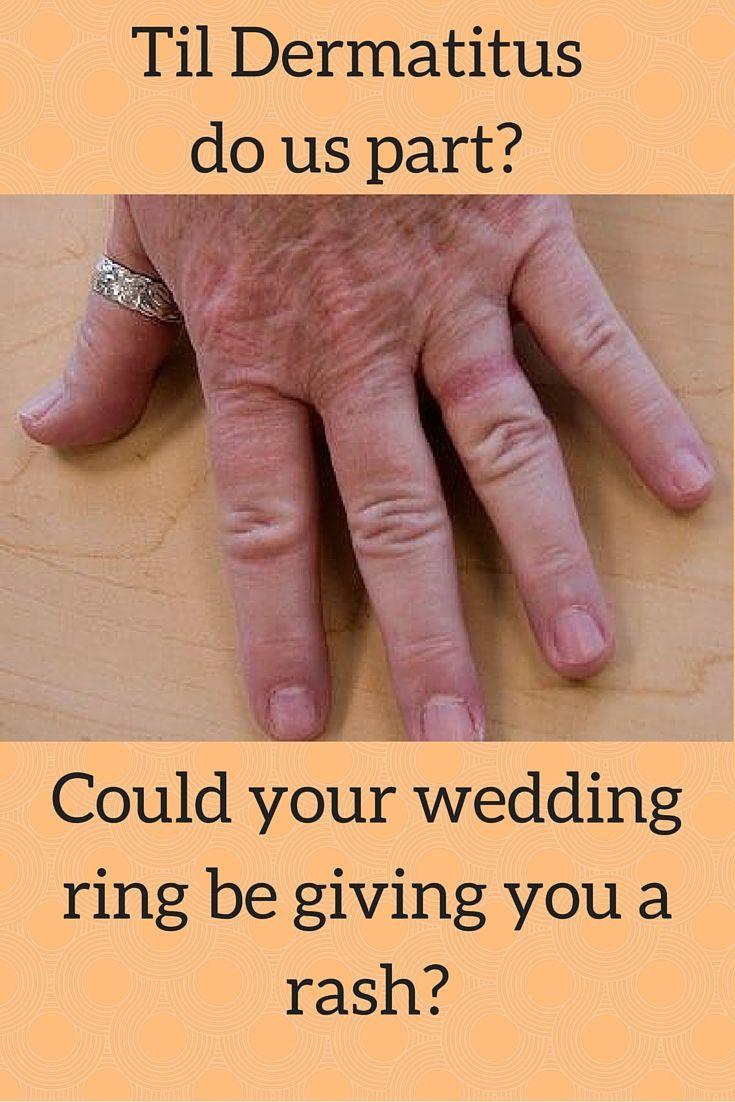 Wedding Ring Dermatitis Article by Wall Street Journal