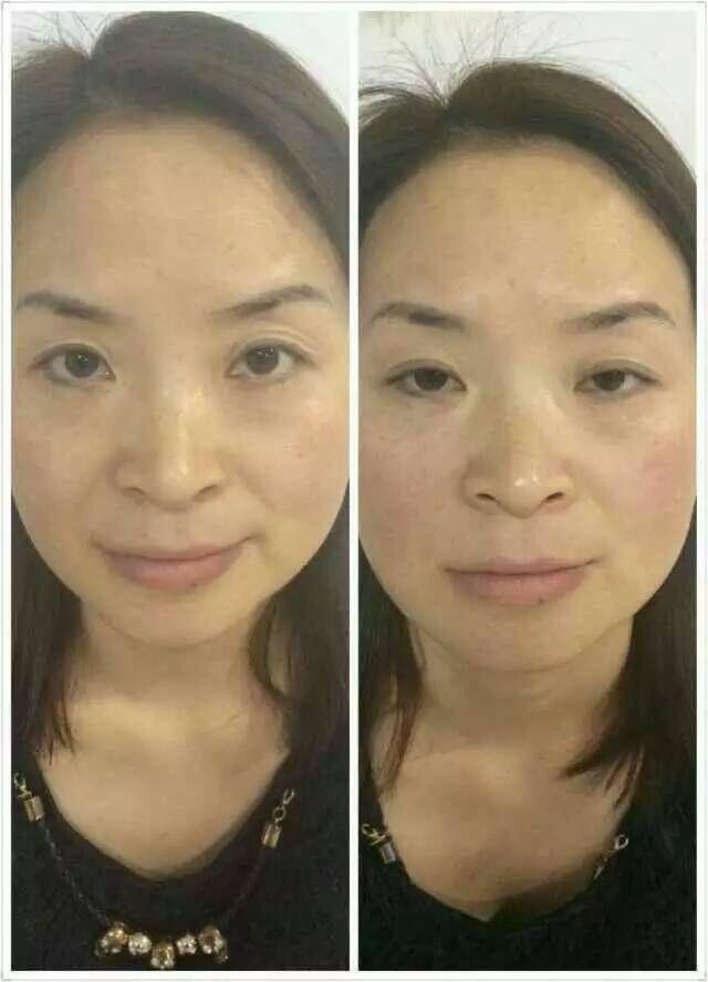 Hifu Treatments Blush - Www imagez co