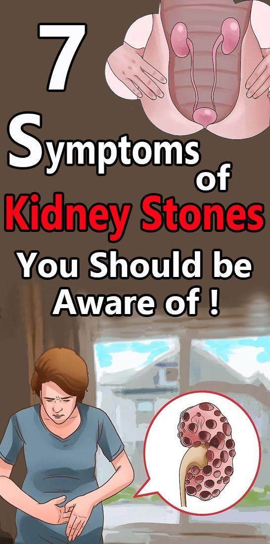 7 Symptoms of Kidney Stones You Should be Aware of #exercisekidneystones