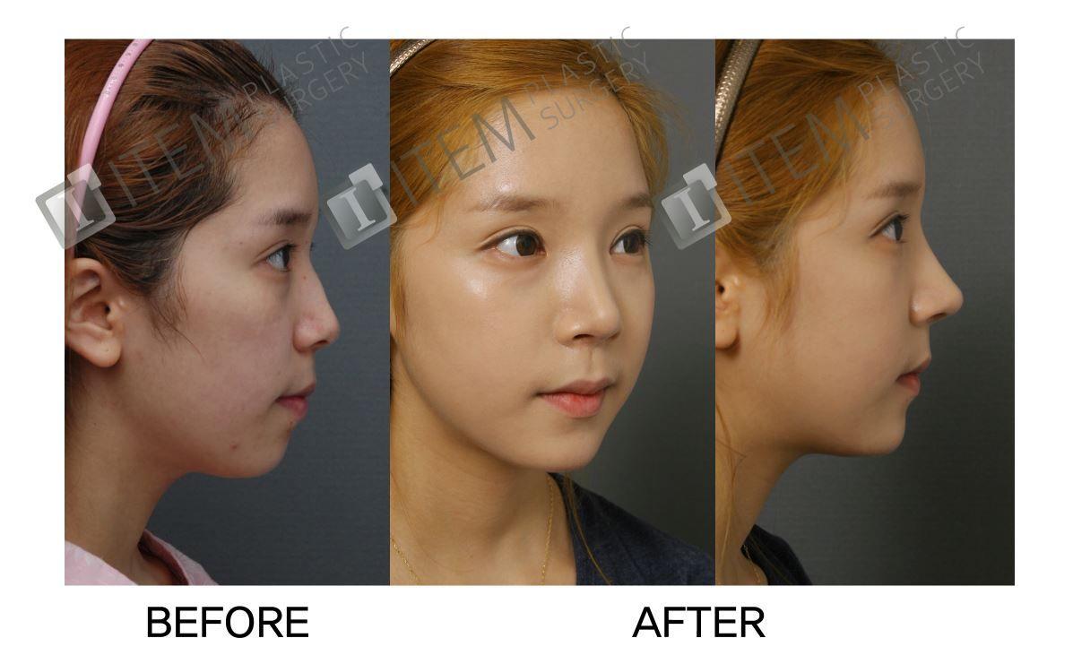 Instructions post facial injury