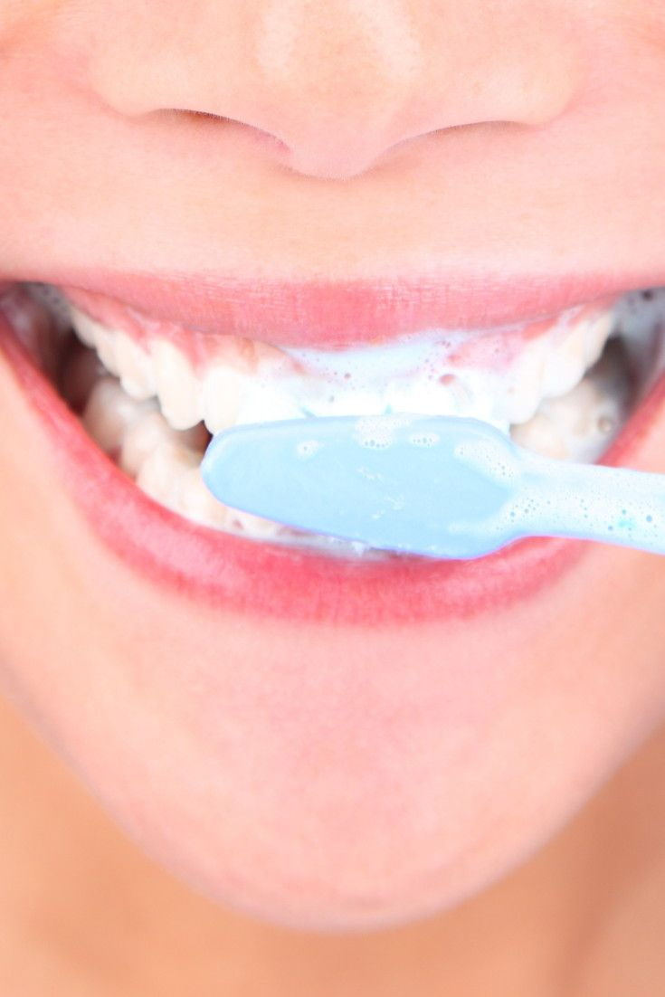 how to know you have a cavity with braces