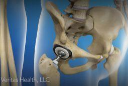 Anterior Vs Posterior Hip Replacement Surgeries With Images Hip Replacement Surgery Hip Replacement Total Hip Replacement