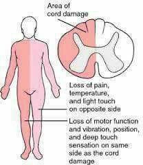 Brown Sequard Syndrome Spinal Cord Injury Spinal Cord Spinal Cord Injury Nursing