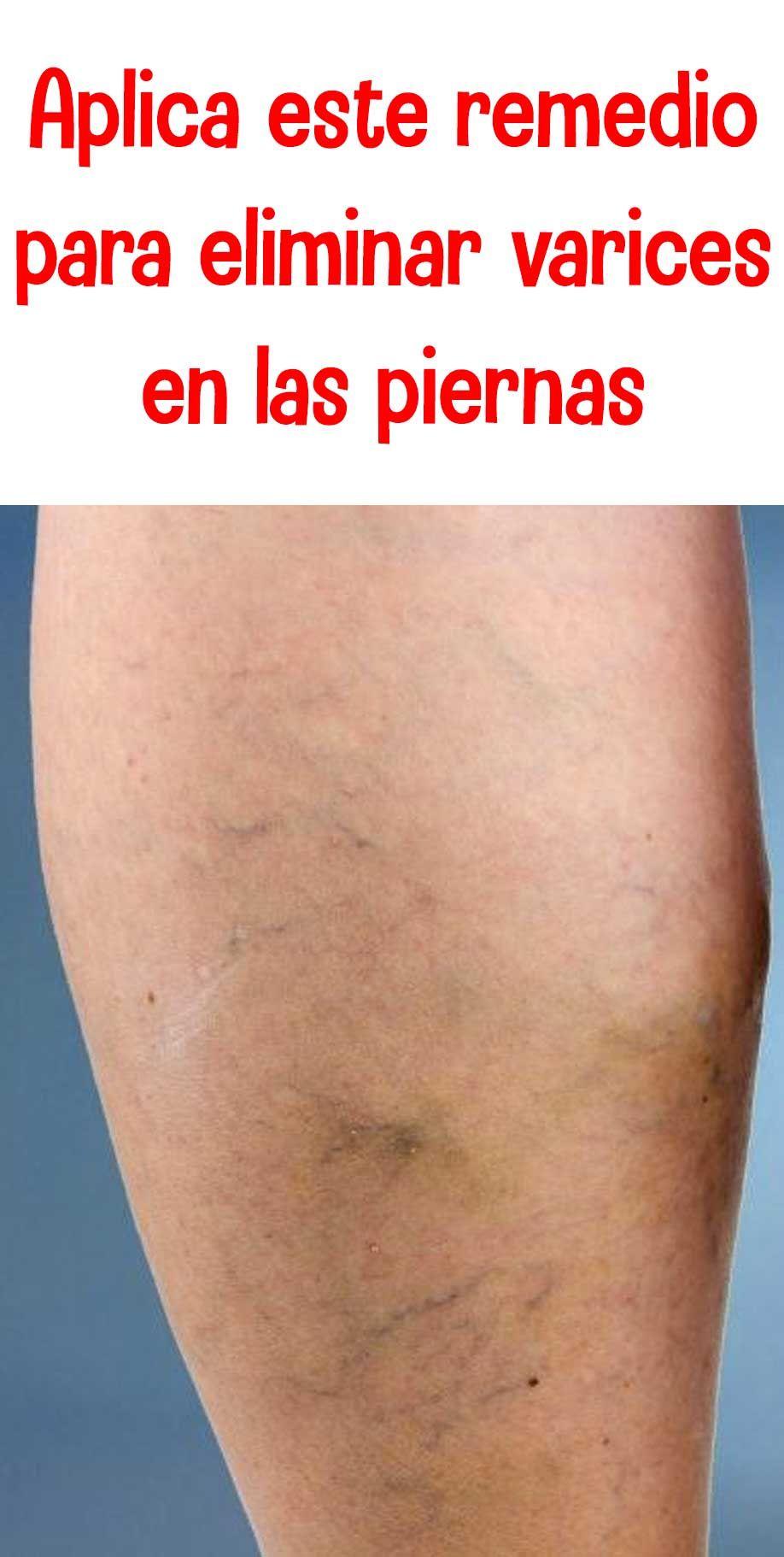 bolsillo de pus en la pierna