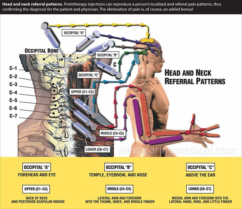 radiculopatía cervical emedicinema