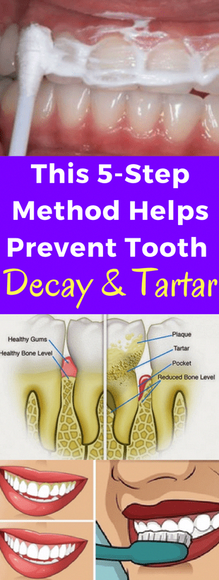 This 5 Step Method Helps Prevent Tooth Decay & Tartar!!!  #beautytips  #fitness #ImportanceOfOralHea...