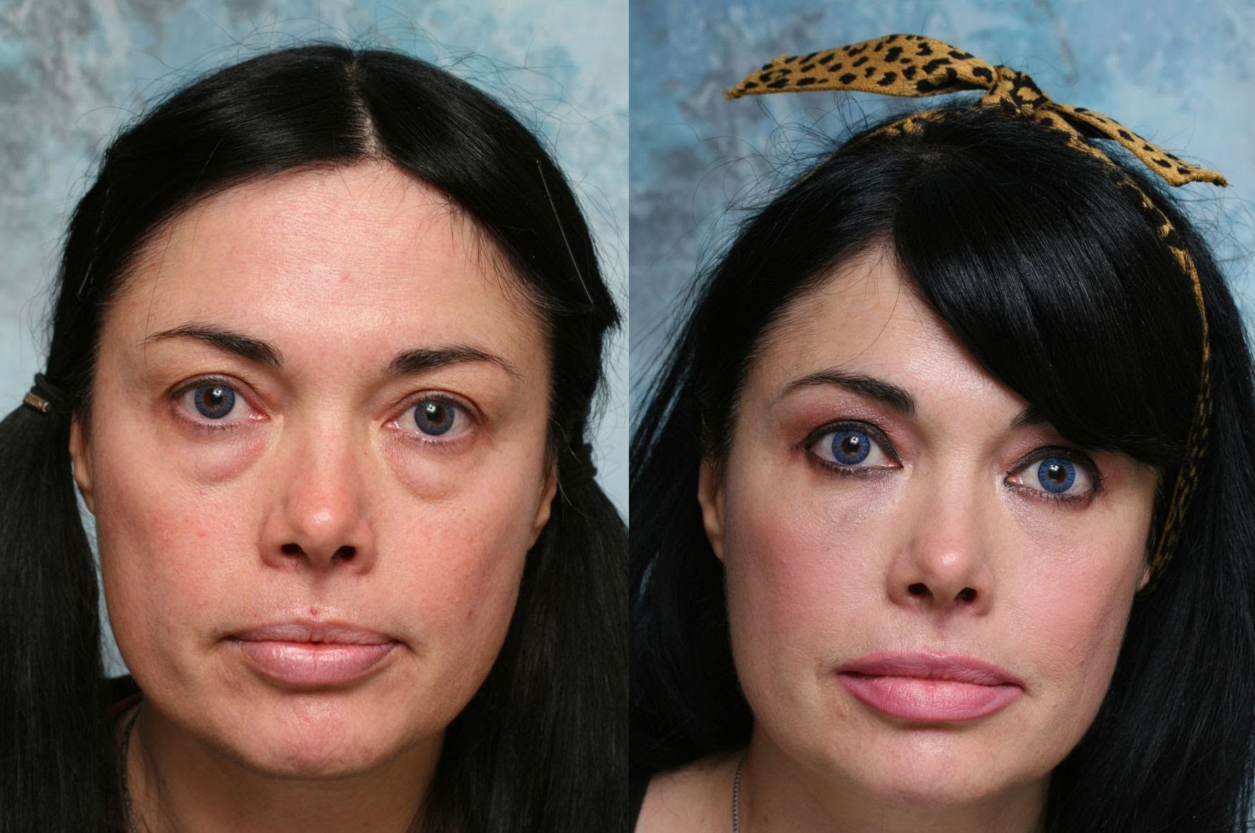 Face Rejuvenation Remedy: Facial Training Workouts To Tone Away Under Ey...