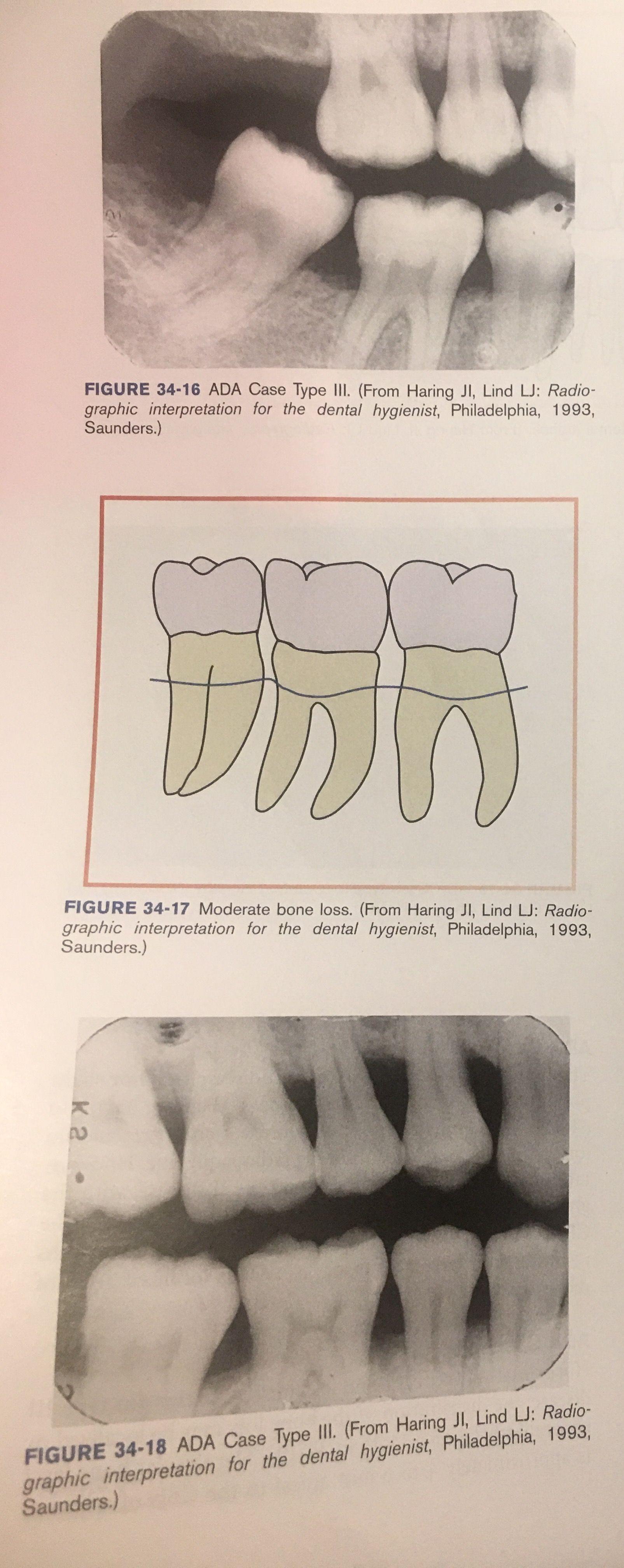 3-4 MM bone loss = Case Type III: Moderate periodontitis ...
