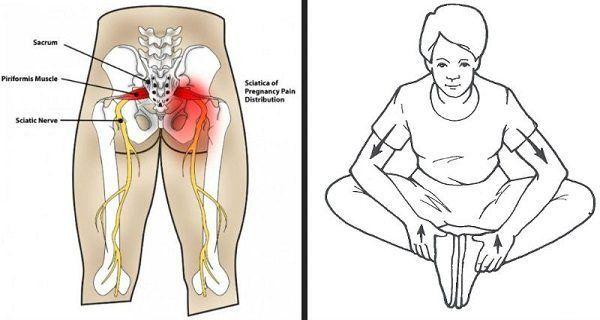 estiramientos-de-cadera #ciaticoejercicios   anatomia y afines ...