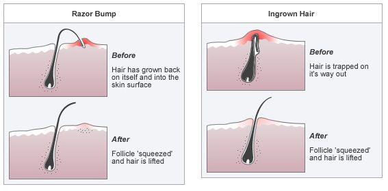 DIY Ingrown Hair Cream To Get Rid of Nasty Red Bumps | bee-u