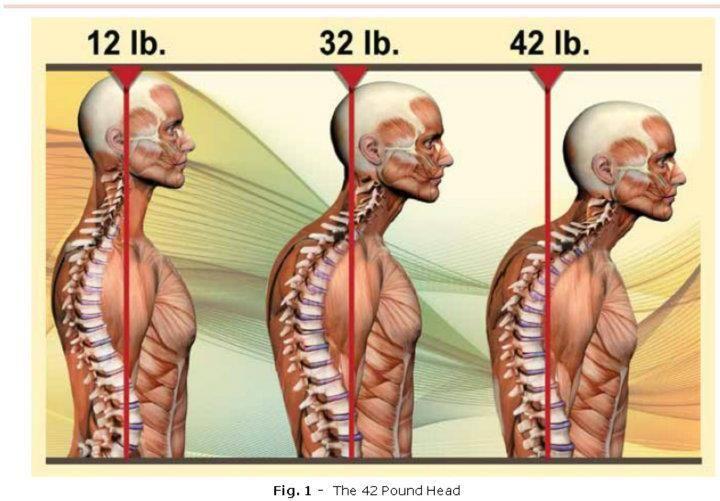 5dfc49111e28f3005f03e956d07e4041 - How To Get A Crick Out Of Your Shoulder