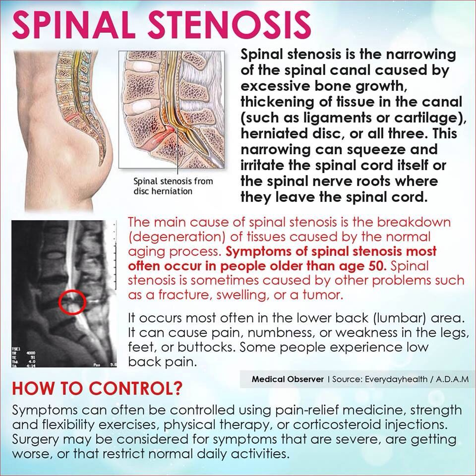 spinal stenosis - definition, signs and symptoms, methods to control