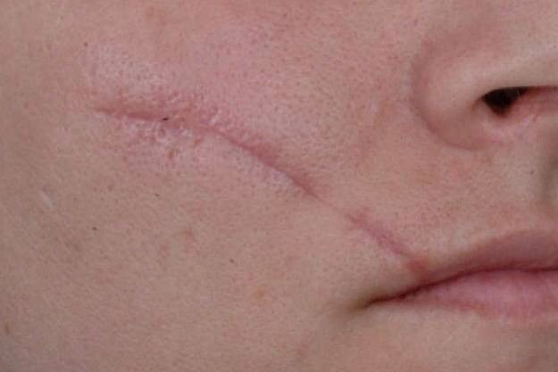 Old facial scars