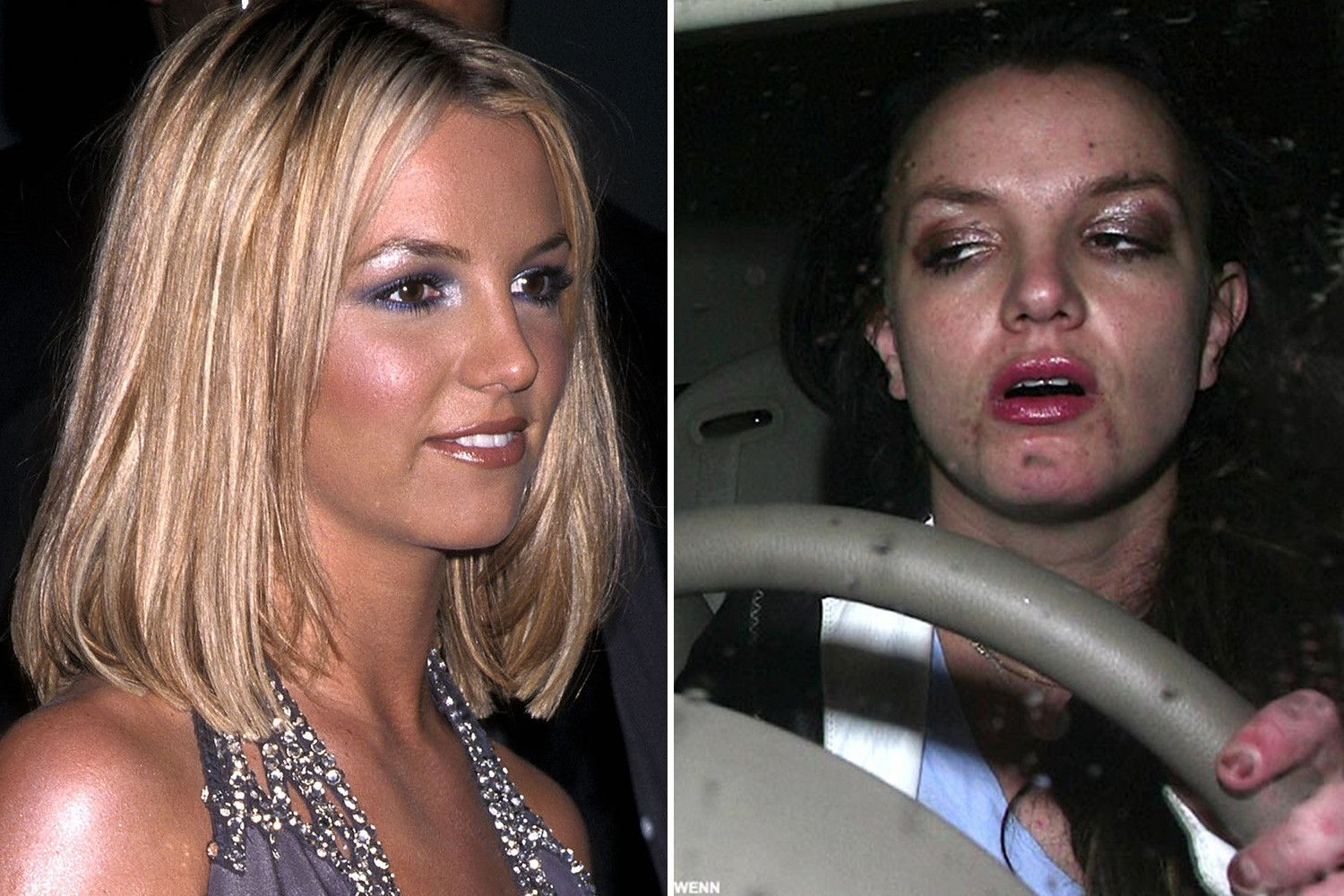 celebrities before and after drugs and alcohol   the alpha cave