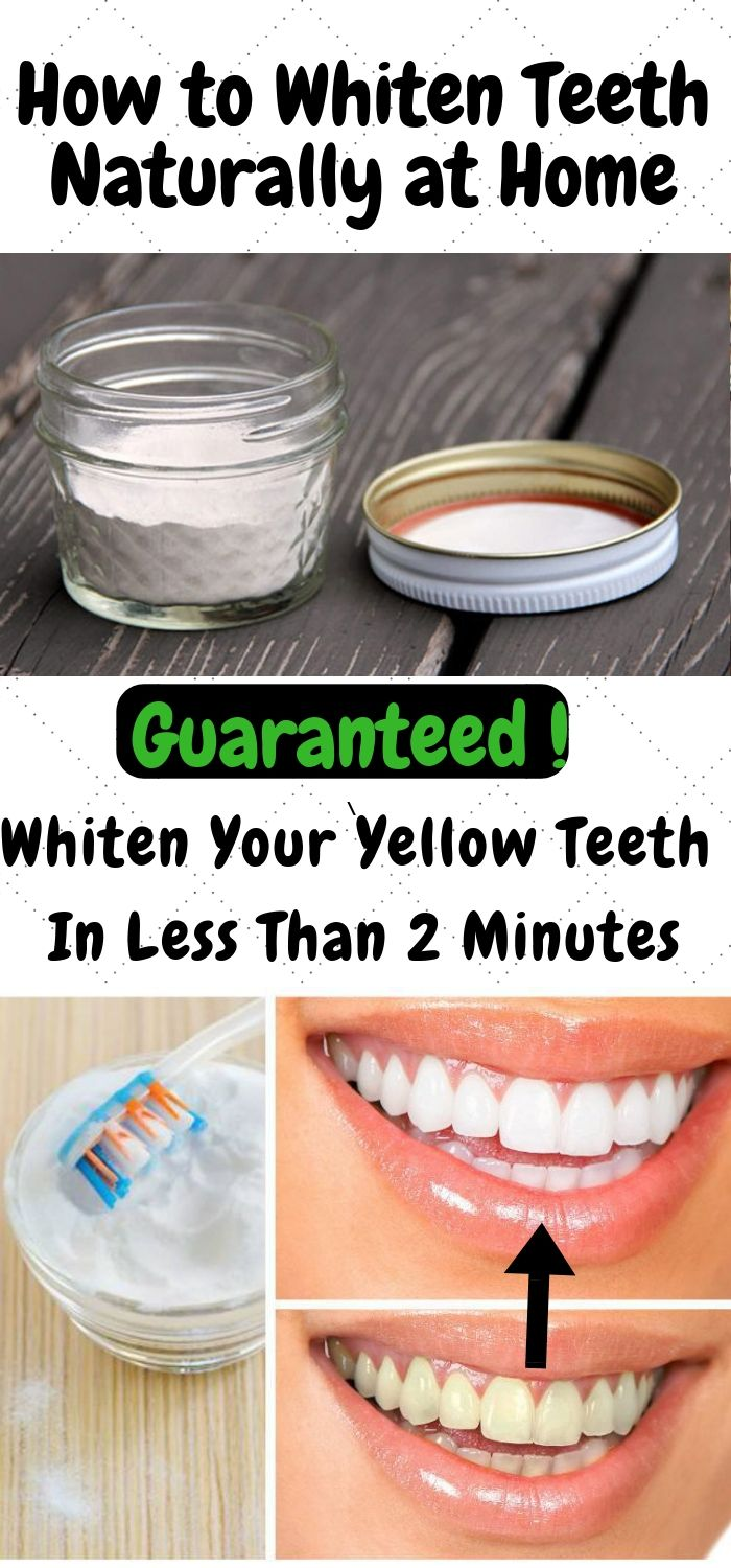 How to Whiten Teeth Naturally at Home - Daily Health Avisor | Daily Health Avisor #howtowhitenyourteeth
