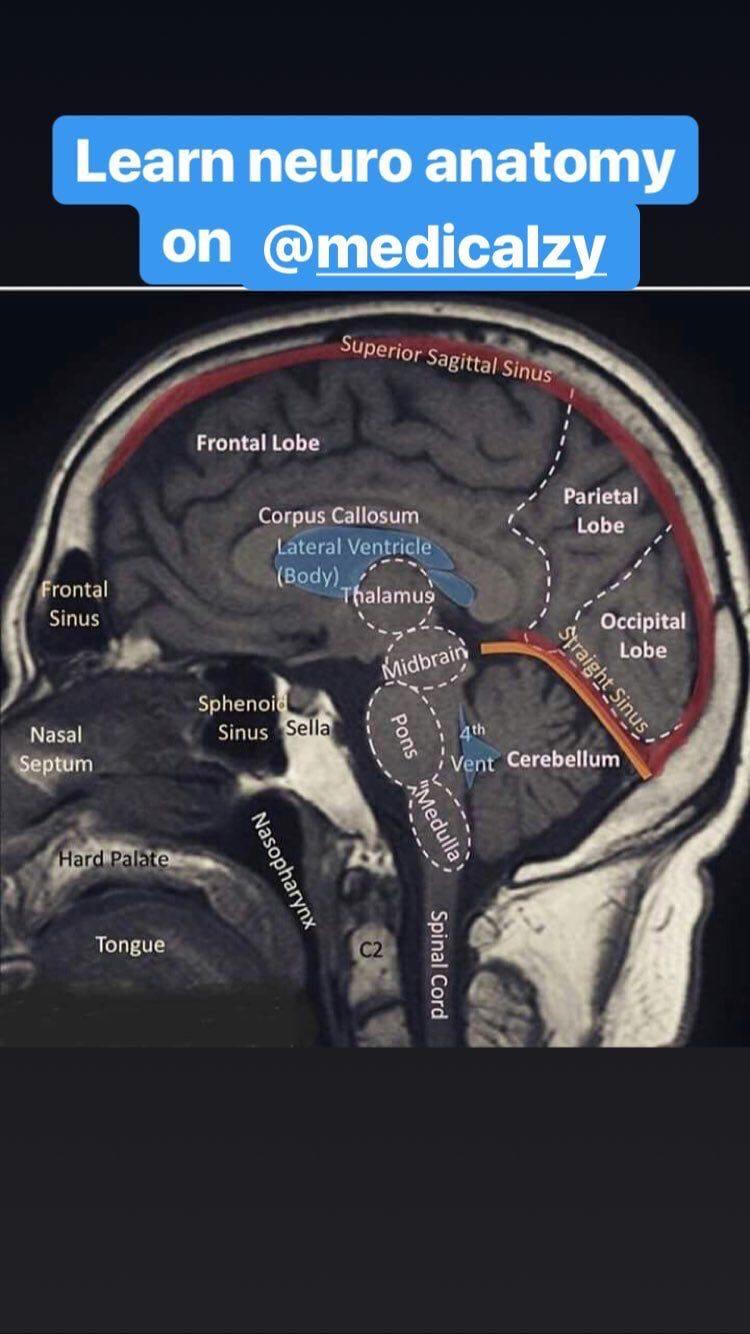 Pin by Anja Simonović on CNS   Occipital lobe, Anatomy ...