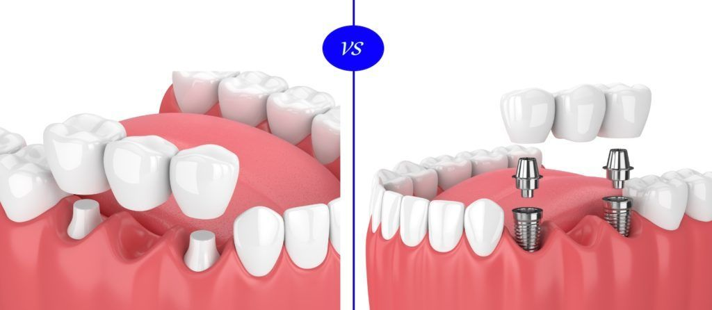 how much does a 4 tooth bridge cost