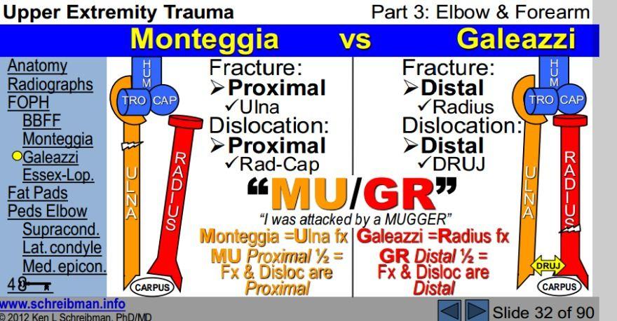 monteggia vs. galeazzi | Medical mnemonics, Pharmacology ...