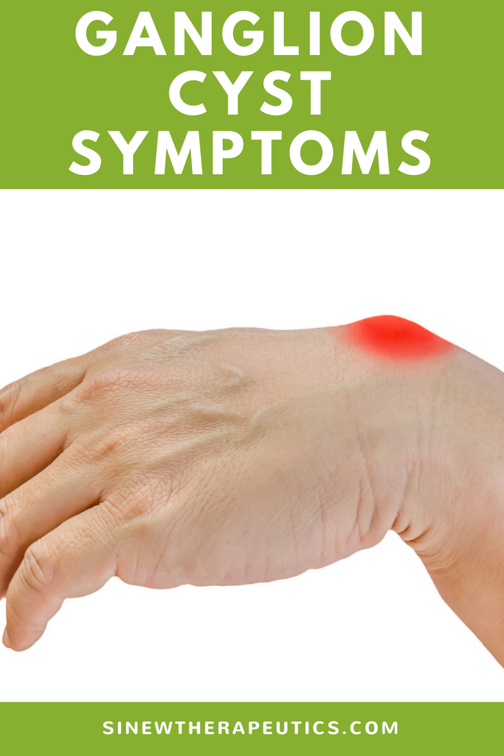 Ganglion Cyst Treatment Options Natural
