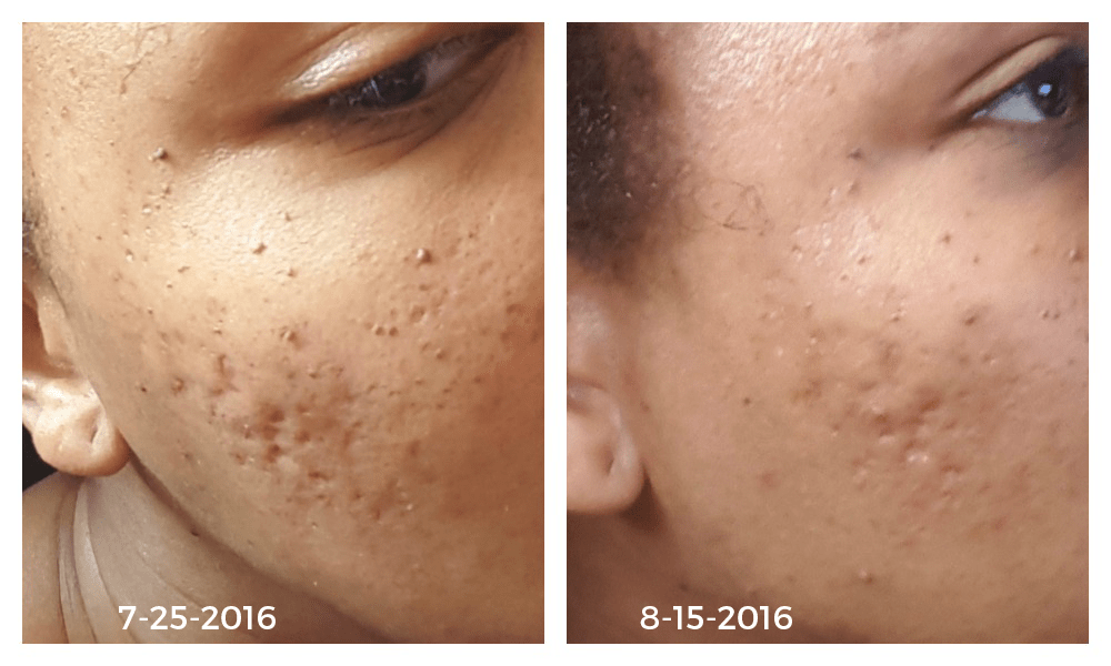 5e141fa5026cb1c2ad248da14f2d01b2 - How To Get Rid Of Acne Scars And Hyperpigmentation Naturally
