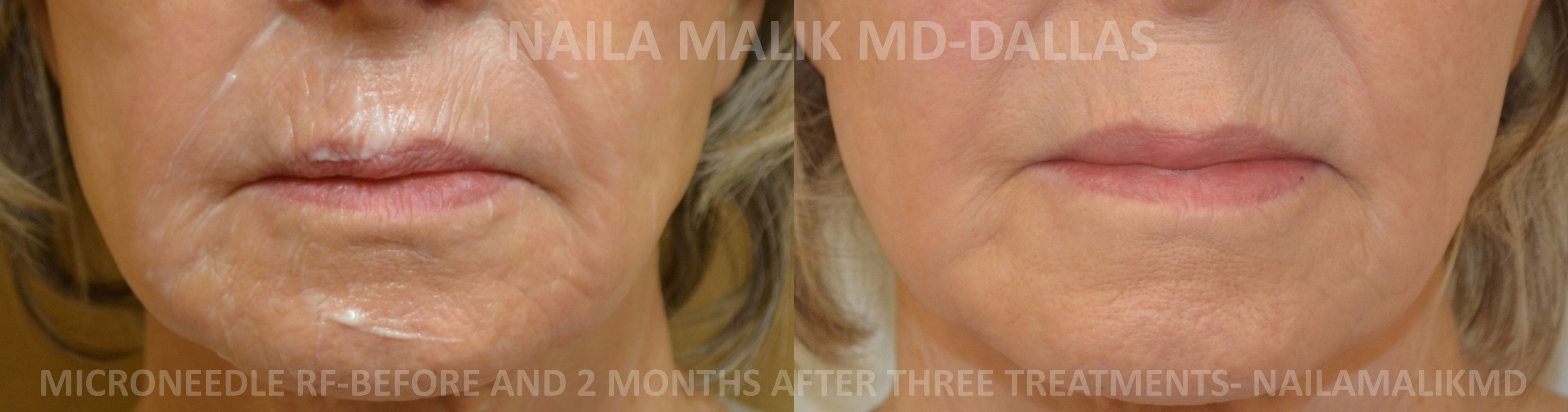 Results of Microneedle Fractional Radiofrequency treatments