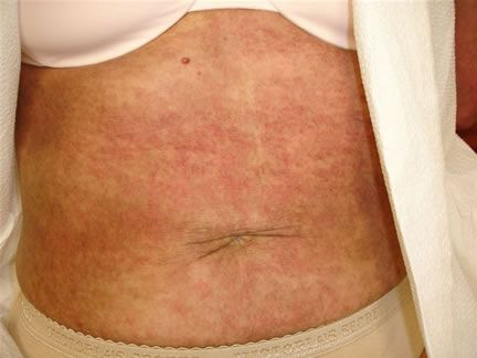 Inclusion Body Myositis - Myositis Support and Understanding