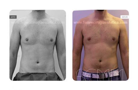 Pin En Ginecomastia Reduccion De La Mama En El Hombre Gynecomastia Male Breast Reduction Surgery