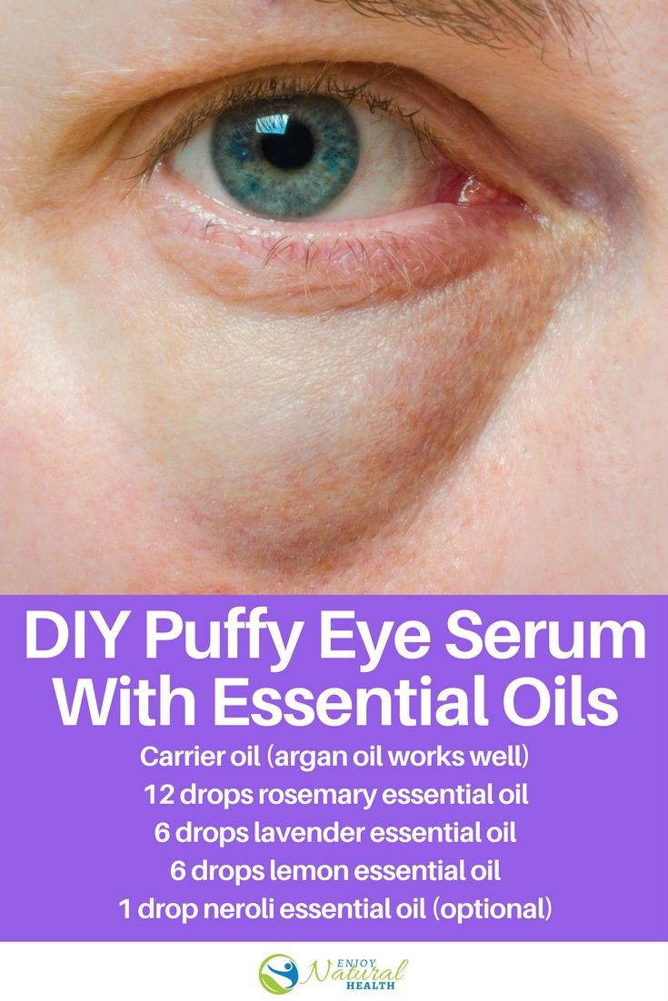 The Best Puffy Eye Serum Made With Essential Oils Neroli