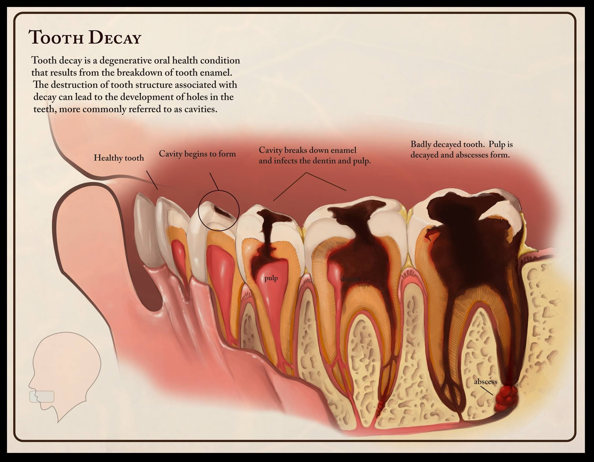 Cavities Are The Result Of Two Primary Factors Bacteria