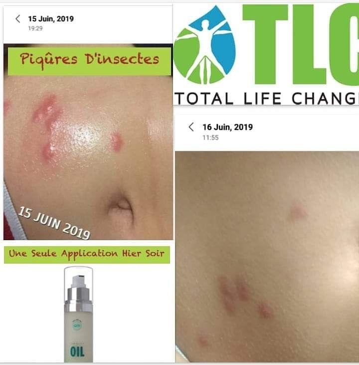 témoignage sur l'huile d'emeu tlc, total life changes ...