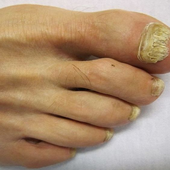 5 Nail Fungus Treatments That Work Overnight | Remedies, Natural ...