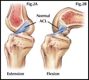 The impact of suffering a torn anterior cruciate ligament