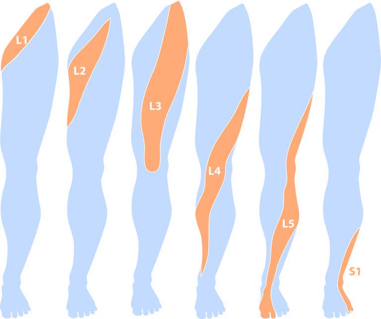 Dermatome L1 | fisioterapia | Pinterest | Anatomía, Fisioterapia y ...