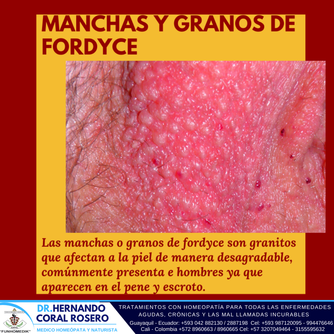 Doctor Para La Manchas Y Granos De Fordyce Fordyce Facebook Sign Up Prevention