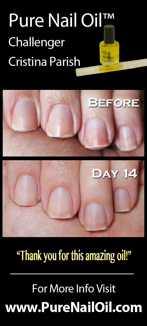 14 DAY RESULTS BY LET\'S GET NAKED CHALLENGER Christina Parish using ...