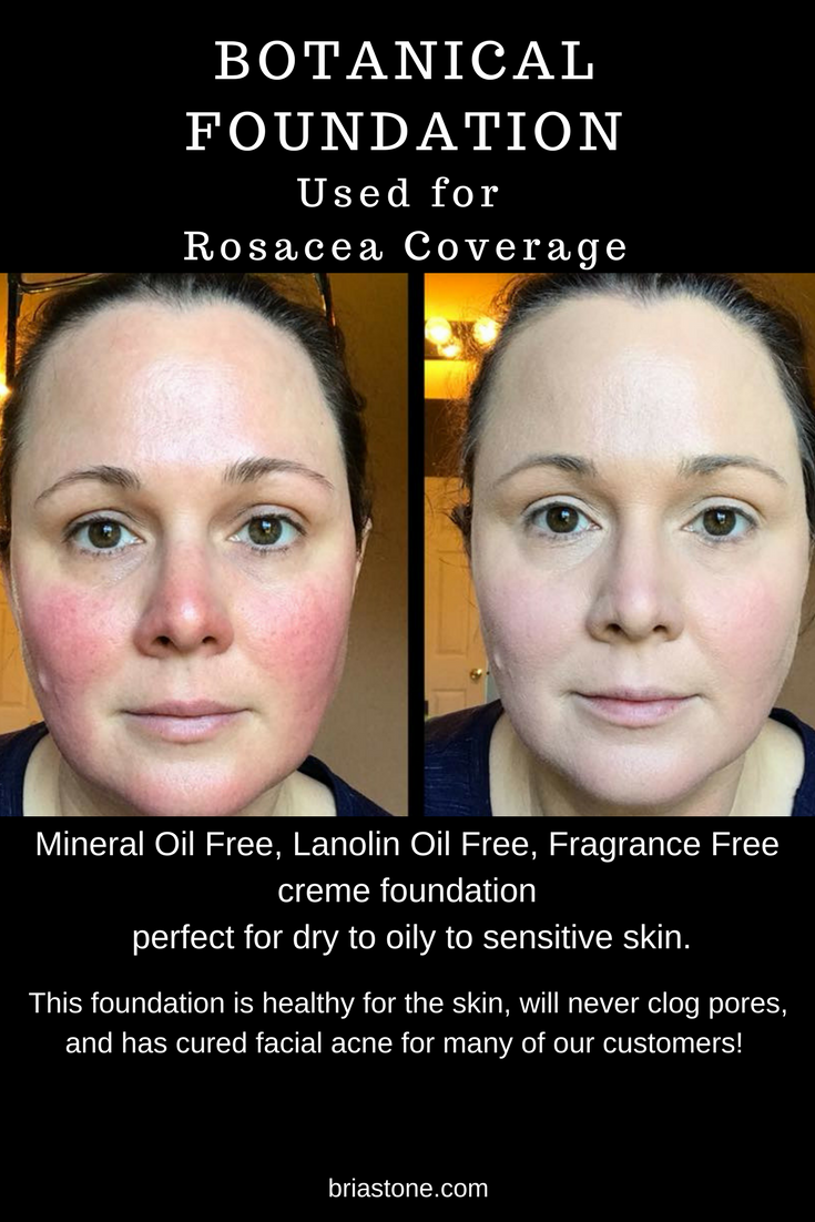 acne rosacea products best anti redness makeup best cover
