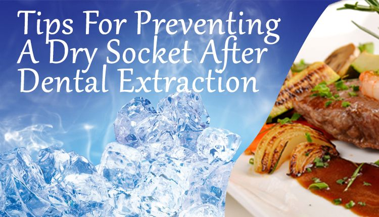Tips For Preventing A Dry Socket After Dental Extraction