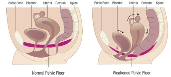 What Every Woman Ought To Know About Vaginal Tightening