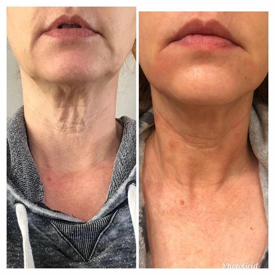 Pin On Skincare Blog