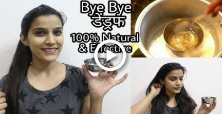How To : Remove Dandruff Permanently | Result in 1st wash | 100% Natural & Effective,  How To : Remove Dandruff Permanently | Result in 1st wash | 100% Natural & Effective,