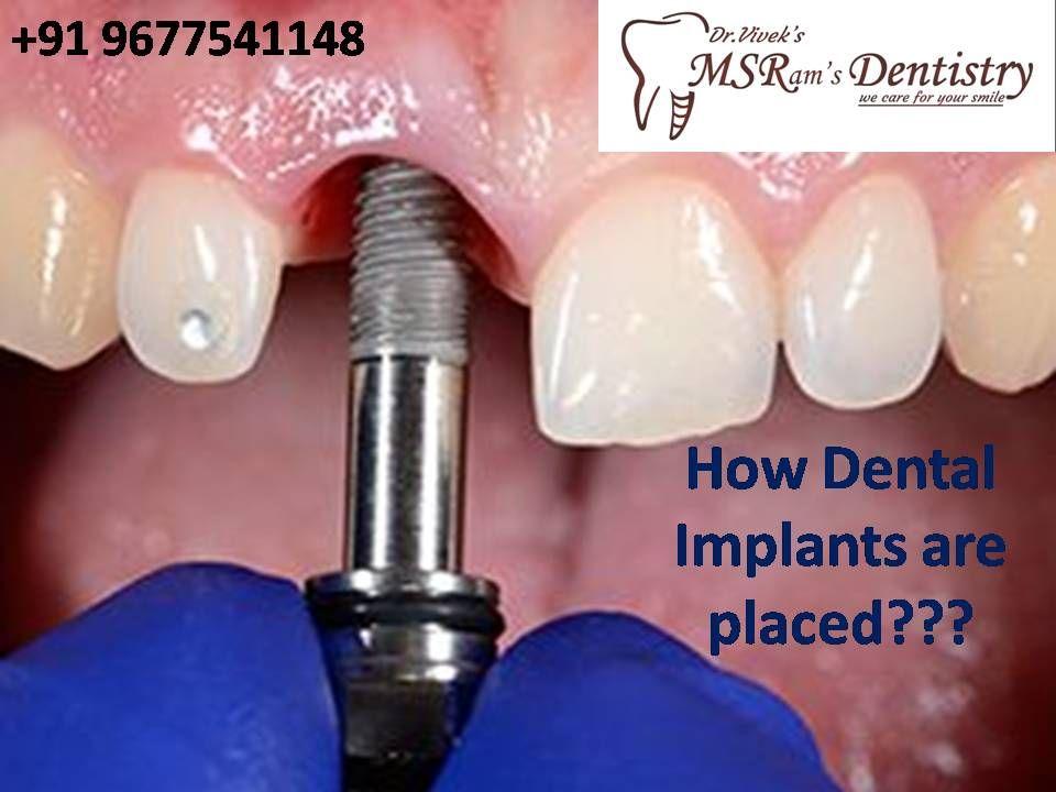 Dental Implants Painless dentistry, Dental implants, Dental