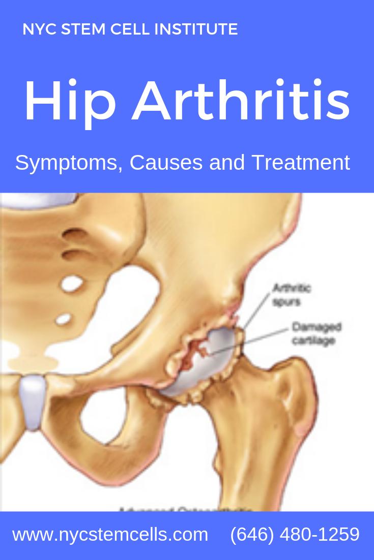 Orthopedic Surgery Arthritis Hip Arthritis Stem Cells