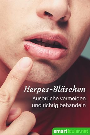 lippenherpes richtig behandeln und vorbeugen alle tipps und tricks heilen pinterest. Black Bedroom Furniture Sets. Home Design Ideas