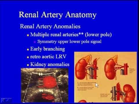 renal artery duplex scan 1 - youtube | ultrahang | pinterest, Powerpoint templates